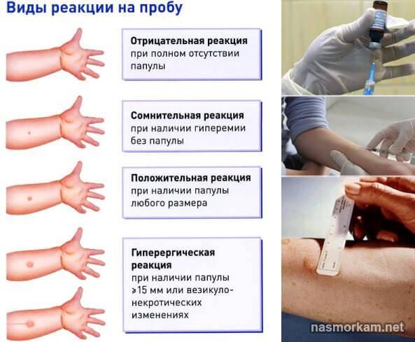 Вираж туберкулиновой пробы у детей