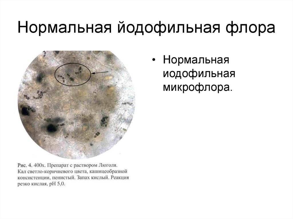 Что означает йодофильная патологическая флора в копрограмме у ребенка?