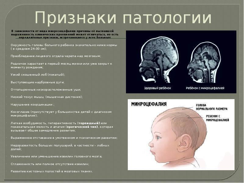 Признаки нейрофизиологической незрелости головного мозга у ребенка - здоровыйребенок