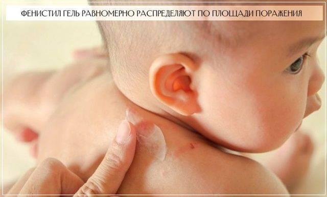 Фенистил для детей (капли и гель): инструкция по применению, подробный обзор препарата