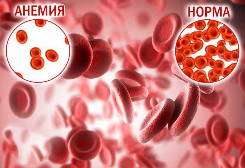 Заболевания крови у детей: анемия, лейкоз, причины, симптомы, лечение