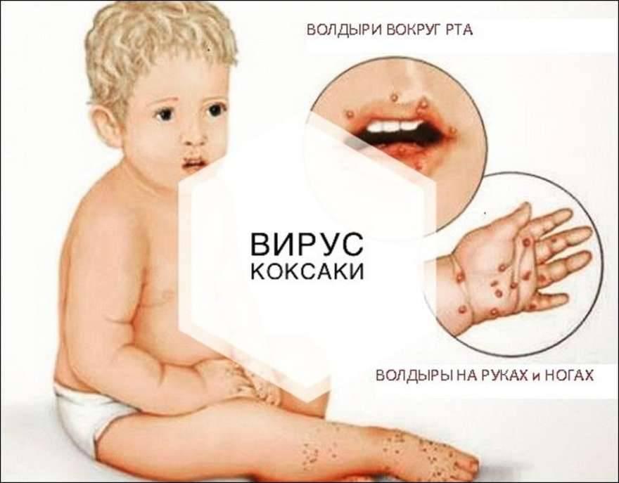 Признаки полиомиелита