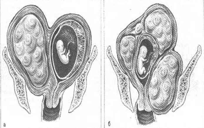 Опущение матки при беременности: можно ли забеременеть и рожать, какие симптомы указывают на патологию и как проходят роды
