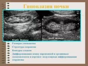 Гипоплазия левой почки у ребенка лечение