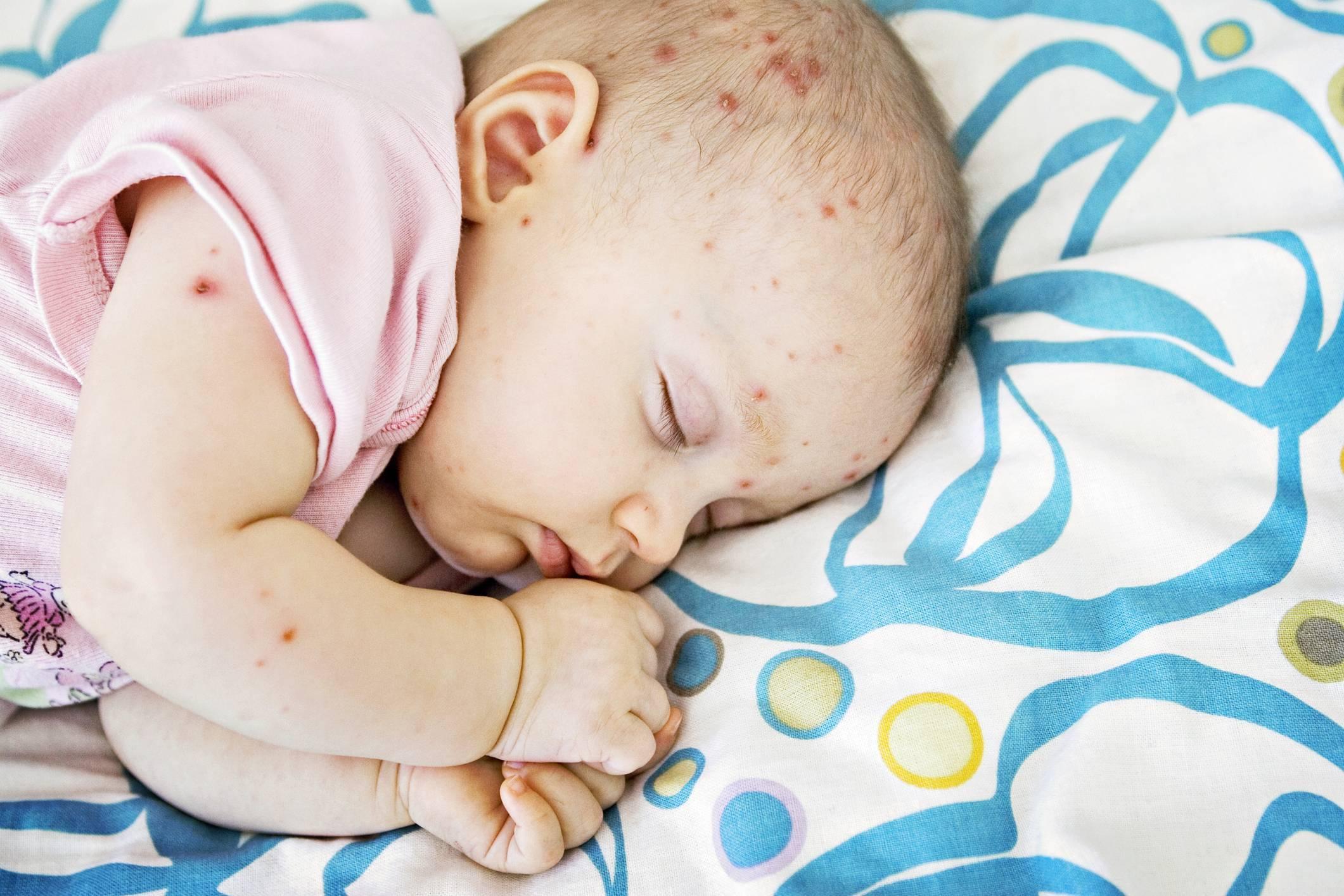 Вирусная пузырчатка у детей: причины и способы лечения