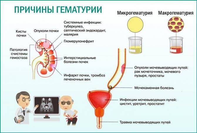 Что означают следы крови в моче у взрослых и детей - медицинский портал «health-ua.org»