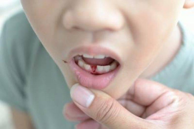 Как вырвать молочный зуб и когда это нужно делать?