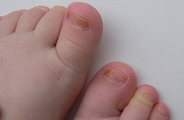 Почему у ребенка на ногах вогнутая форма ногтей и что с этим делать?