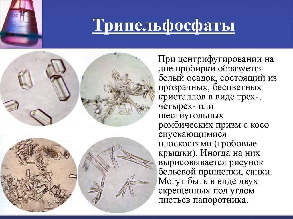 Аморфные кристаллы в моче у ребенка