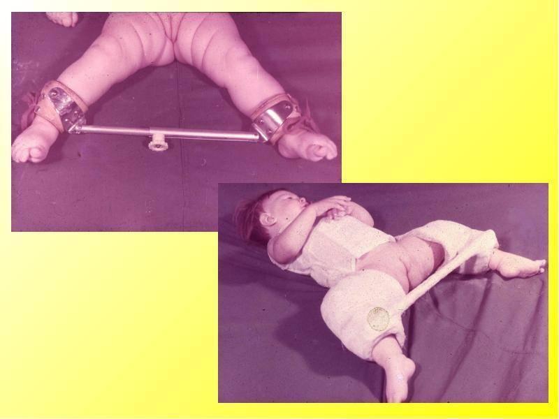 Дисплазия тазобедренных суставов у детей: как диагностируется и лечится заболевание