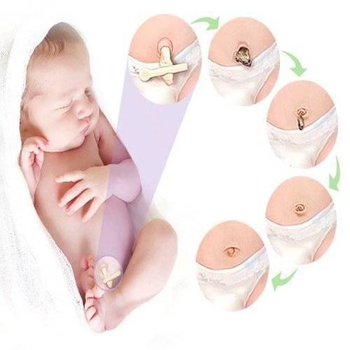 Омфалит у новорожденного: профилактика и лечение