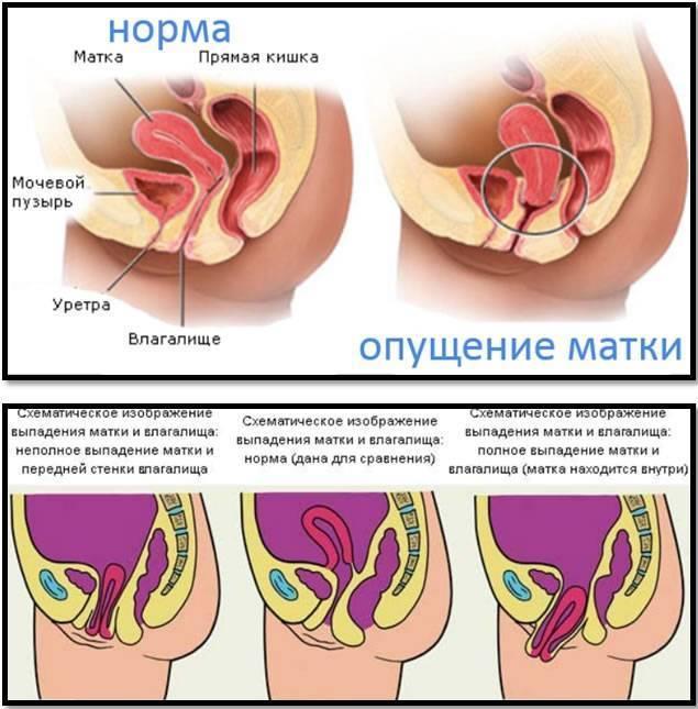 Опущение матки: операция, отзывы женщин, восстановление после процедуры и возможные последствия + как делается подшивание органа