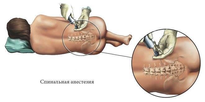 Спинальная и эпидуральная анестезия: различия | vnarkoze.ru