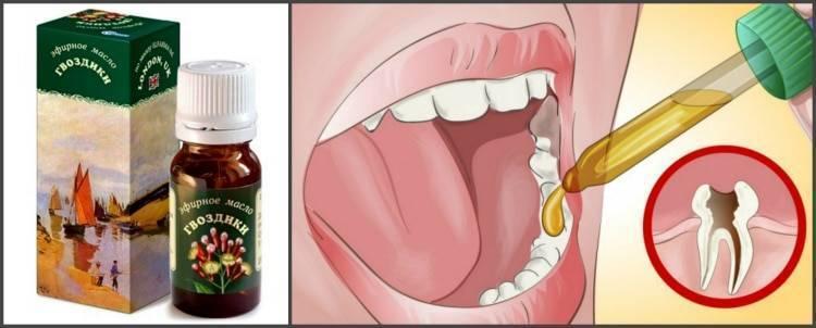 У ребенка болит зуб: причины, лечение, как помочь ребенку при сильной зубной боли