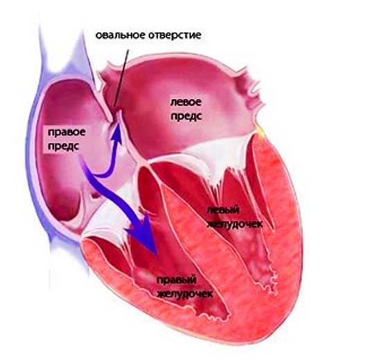 Овальное окно в сердце: в чем опасность патологии и ее симптомы
