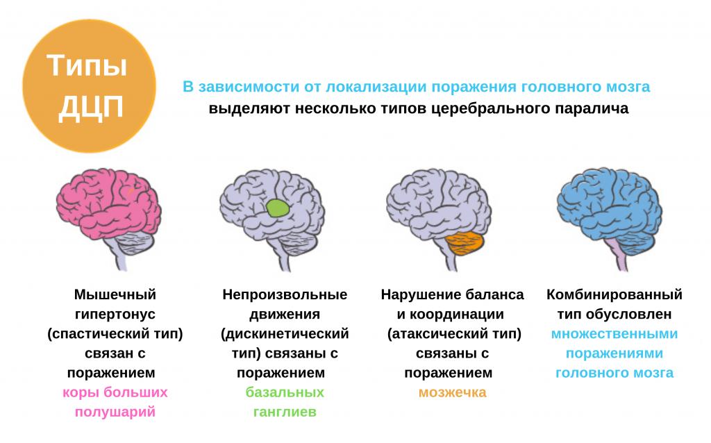 Нейрофизиологическая незрелость головного мозга у ребенка: ? популярные вопросы про беременность и ответы на них
