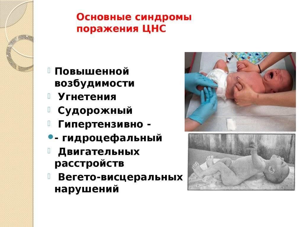 Пэп: симптомы и последствия диагноза у новорожденных / mama66.ru