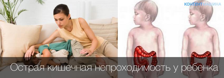 Кишечная непроходимость симптомы у детей 3 лет | tsitologiya.su