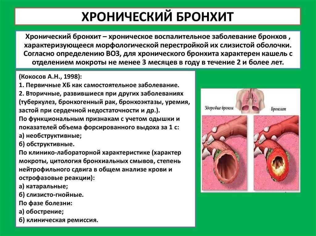 Хронический рецидивирующий бронхит у детей симптомы и лечение: как отличить инородное тело в бронхах