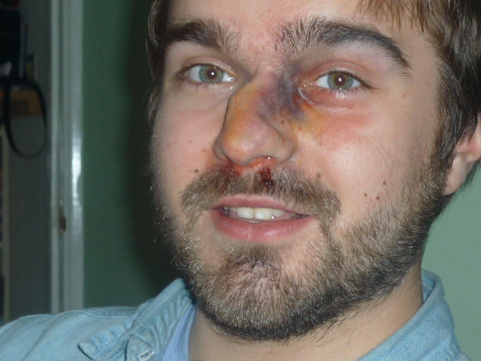 Перелом носа: симптомы, лечение, первая помощь, как вправляют, реабилитация