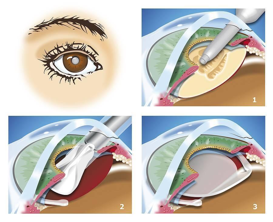 Что такое склеропластика глаз, для чего и как проводят операцию?