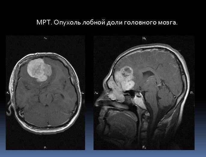 Глиома головного мозга (доброкачественная и злокачественная глиальная опухоль) – продолжительность жизни