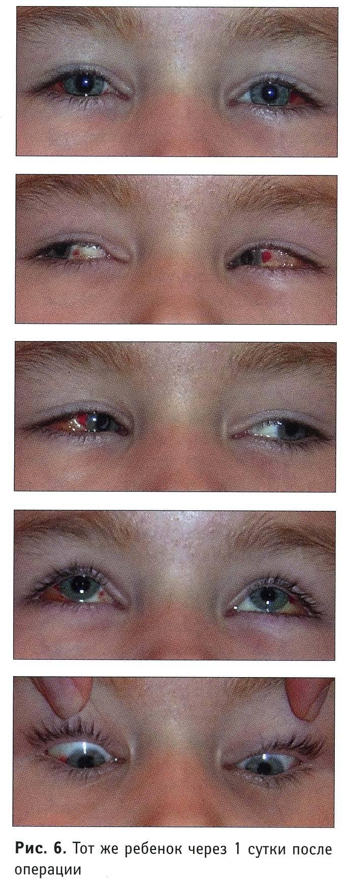 """Склеропластика у детей: виды операции - """"здоровое око"""""""