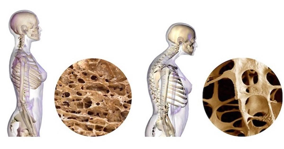 Ювенильный ревматоидный артрит у детей: симптомы и лечение