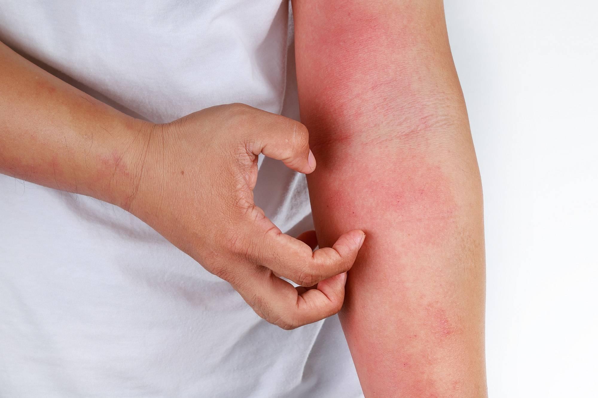 Аллергия у ребенка по всему телу • аллергия и аллергические реакции