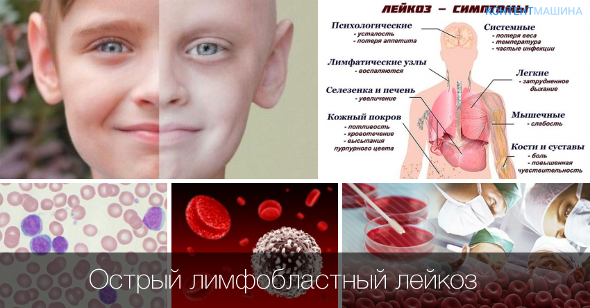 Острый лимфобластный лейкоз у детей: причины и симптомы, классификация, диагностика, лечение и прогноз