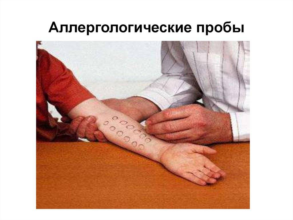 Определить наличие аллергии по анализу крови