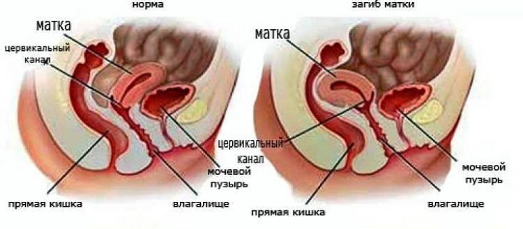 Седловидная матка и беременность: что мешает зачатию? можно ли забеременеть?