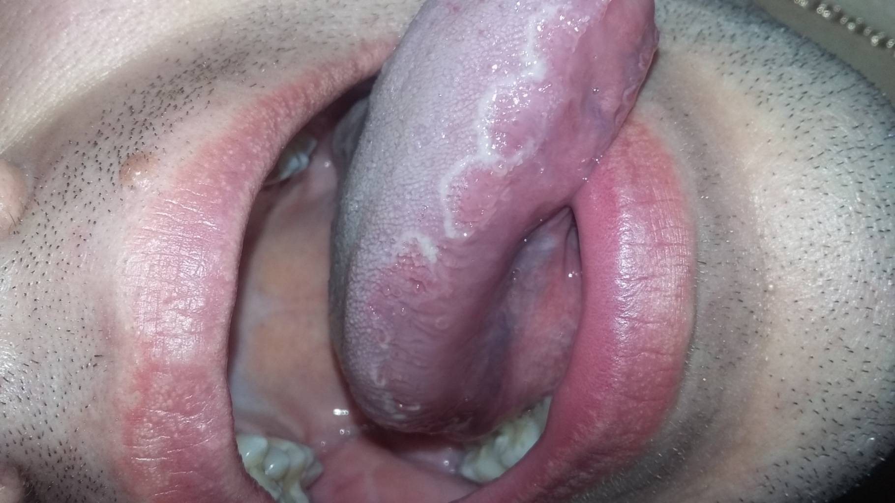 Лечение герпеса во рту у детей