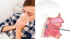 Острый аденоидит у детей: симптомы, способы лечения