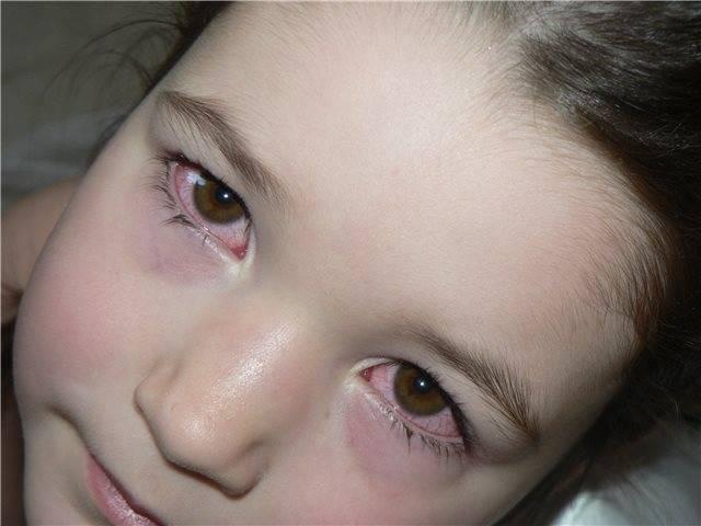 У ребенка отекли глаза и заложен нос - ушиб-лечение