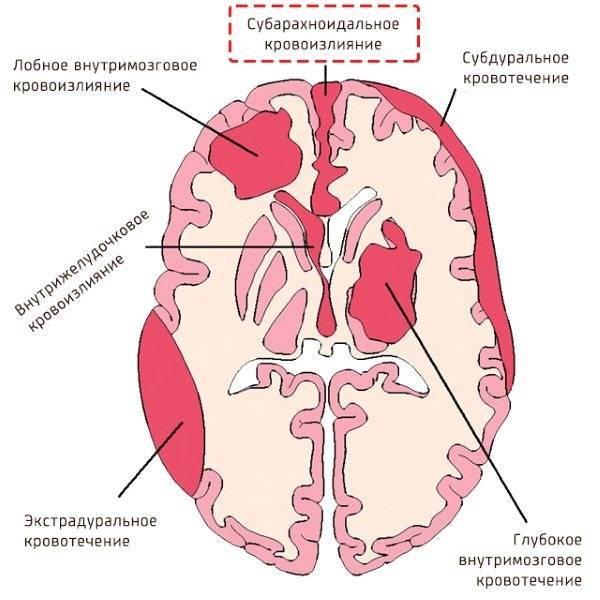 Кровоизлияние в мозг у новорожденных: последствия, степени, причины, симптомы, лечение