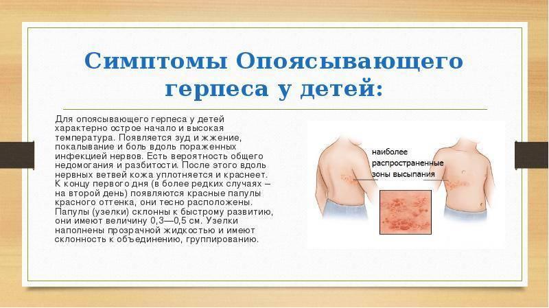 Лечение вируса герпеса 6 типа, 1, 2, зостера, эпштейна-барра, цмв, 7 и 8