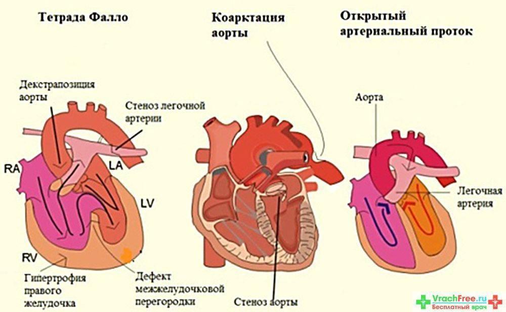 Сердечные тайны. пороки сердца у детей