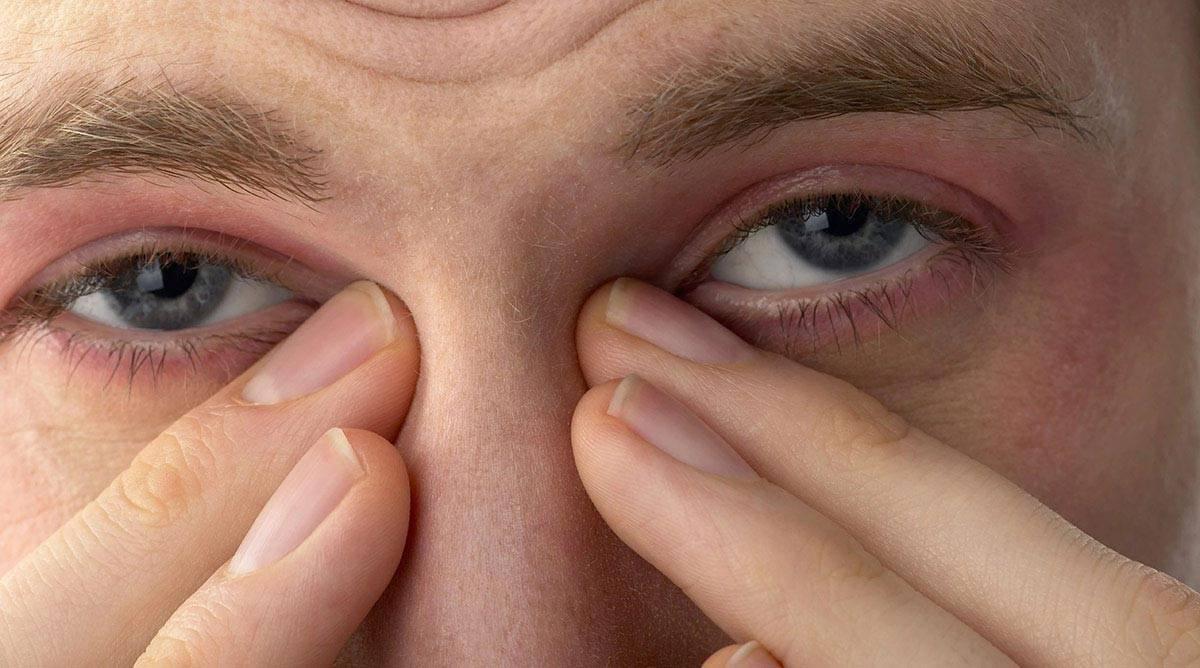 Красные глаза: причины воспаления и лечение. глаза гноятся и покраснели - поджелудочная