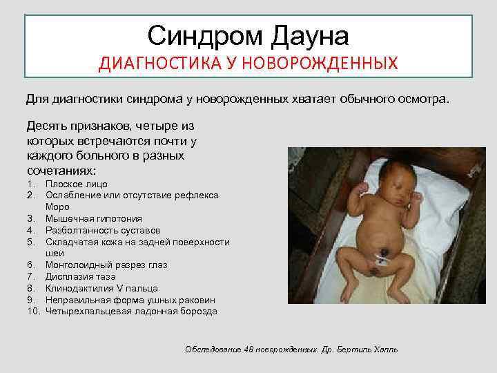 Признаки синдрома дауна малыша: в утробе и после рождения