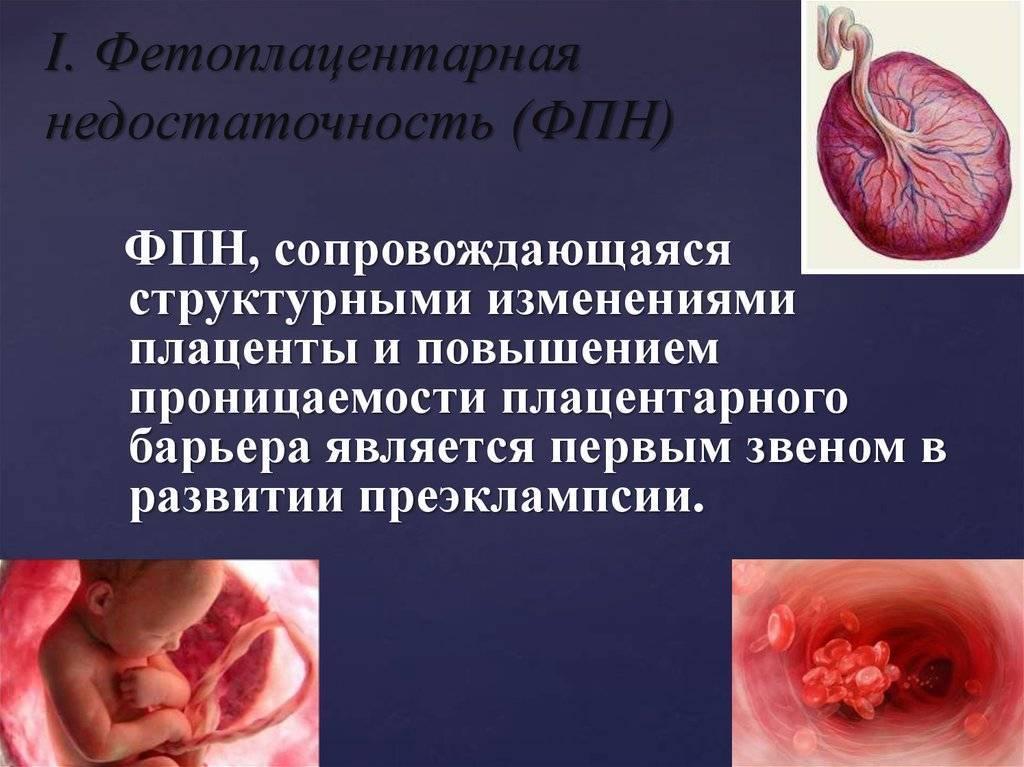 Плацентарная недостаточность: причины, лечение при беременности, степени, симптомы и последствия для ребенка