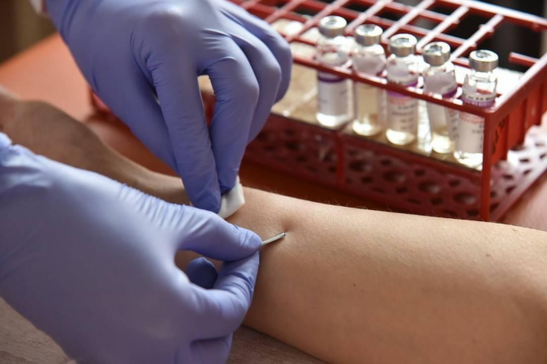 Анализы на аллергены у взрослых: как сдавать и какие бывают