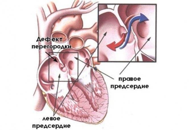 Дефект межпредсердной перегородки: вторичный врожденный порок сердца у новорожденных детей и взрослых
