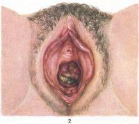 Болит промежность после родов - причины и способы облегчения боли