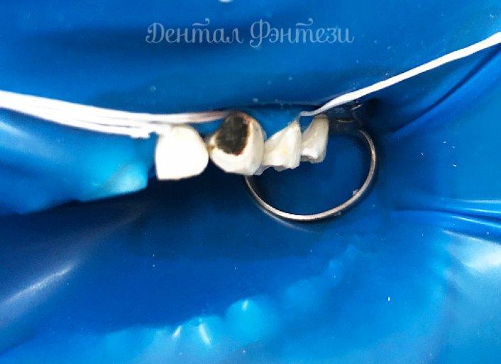 Остановим кариес: о процедуре серебрения и альтернативных методах укрепления молочных зубов