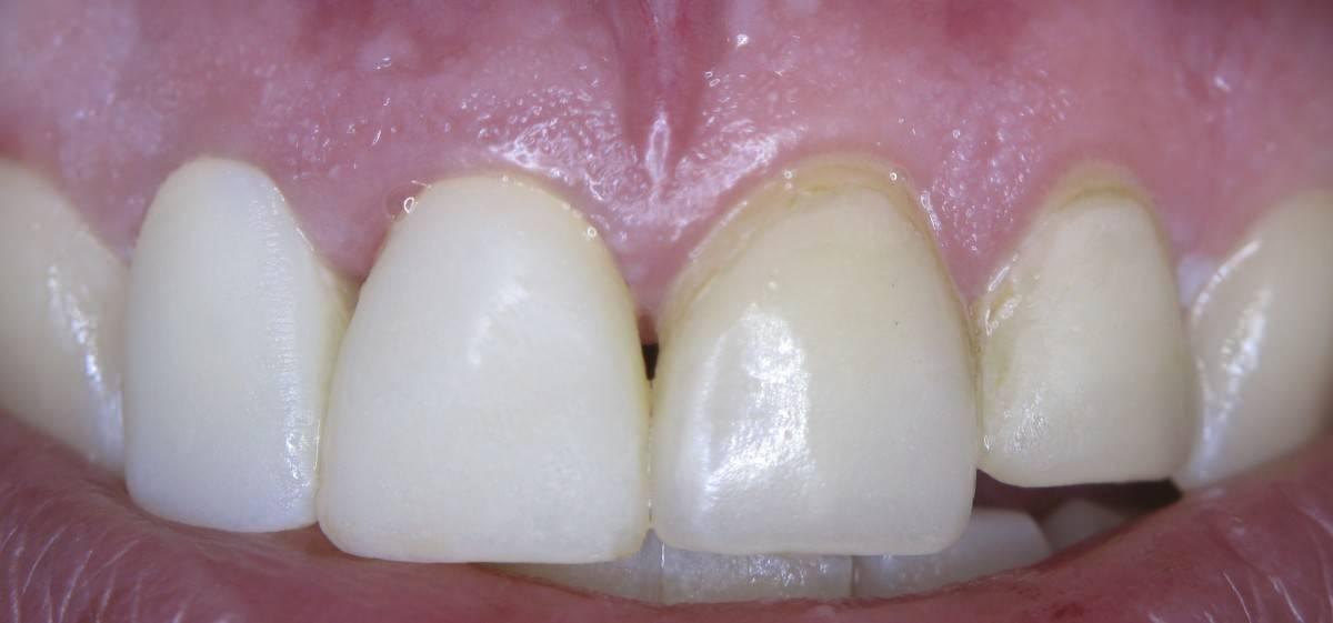 Коричневые пятна на зубах у ребенка: фото, причины, осложнения, лечение