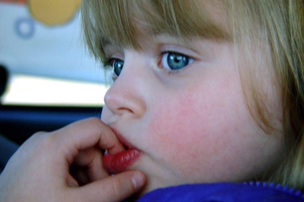 Сухость во рту: причины и лечение ксеростомии – таблетикс