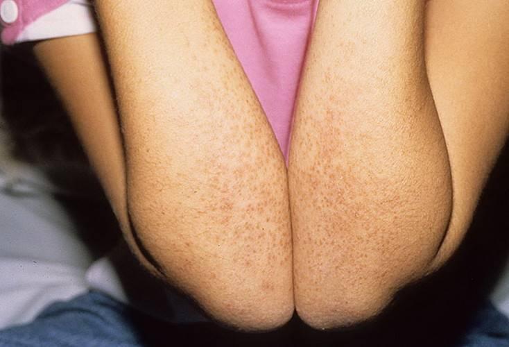 Причины болезни кавасаки, симптомы, лечение и прогноз