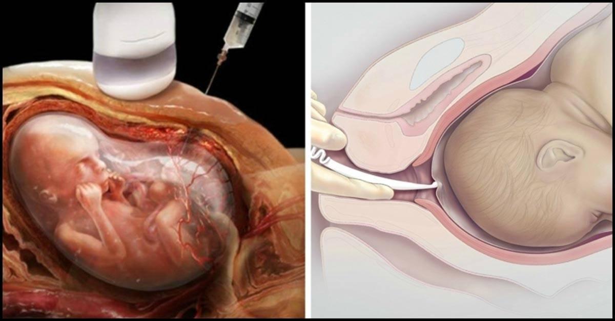 Гестоз: как лечить после родов, когда проходит, какие могут быть последствия для ребенка?