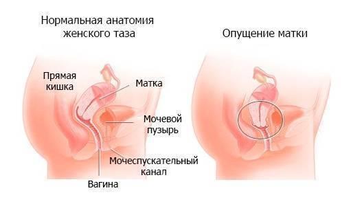 Опущение матки и стенок влагалища после родов: симптомы, причины, последствия, лечение